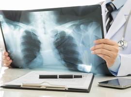 AI : Verdwijnt de radioloog?