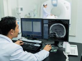 Piratages informatique d'un service de radiologie pour modifier les résultats de l'imagerie médicale