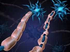 Belangrijke stap in onderzoek naar behandeling van progressieve MS
