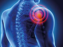 Pijnlijke schouder: proximale suprascapulaire zenuwinsluiting veroorzaakt door een osteoïd osteoom van de spina scapulae