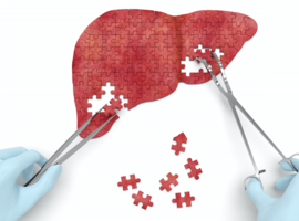 NASH, la maladie silencieuse, un véritable problème de santé publique