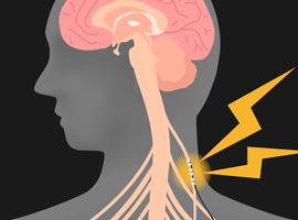 Un nerf vague actif permet de se battre plus longtemps contre le cancer (VUB et Odisee)
