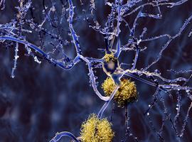 Alzheimer: Leuvens onderzoeker begiftigd met hoop én miljoenensteun