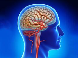 Se préoccuper ou non d'une fracture de stent carotidien?