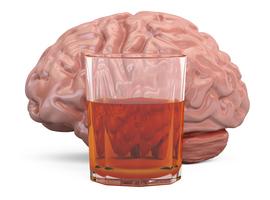 Quand le cerveau trinque