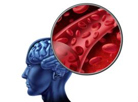 Micro-saignements cérébraux, anticoagulation et risque hémorragique