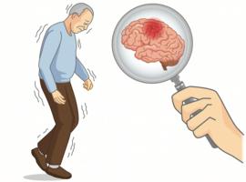 «L'hypocaféinémie», biomarqueur précoce de la maladie de Parkinson?