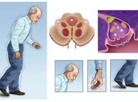 Déficit cognitif et Parkinson