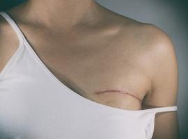 Kom op tegen Kanker klaagt hoge prijs van nieuwe technieken voor borstreconstructie aan