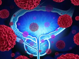 Actualités thérapeutiques dans le cancer de la prostate métastatique hormonosensible