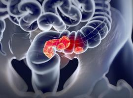 Dépistage du cancer colorectal et mortalité par cancer