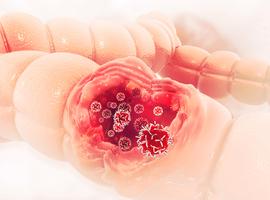 L'immunothérapie également prometteuse contre le cancer du côlon, selon une étude