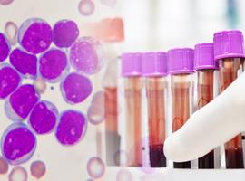 Haplo-GCSH après une déplétion en lymphocytes T alpha/bêta et en lymphocytes B