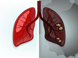 Cancer du poumon: la Belgique parmi les bons élèves dans la lutte anti-tabac