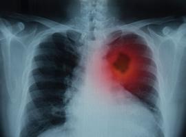 Le canakinumab peut-il réduire l'incidence/la mortalité du cancer du poumon en cas d'athérosclérose?