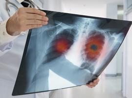 Cancer du poumon : une plateforme informatique pour connaître les essais cliniques en cours dans le monde