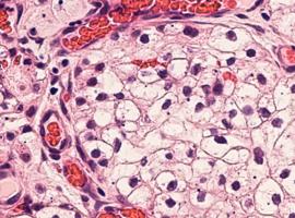 Avélumab + axitinib versus sunitinib dans le carcinome à cellules rénales avancé