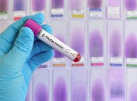 Greffe de cellules hématopoïétiques et β-thalassémie: une expérience française