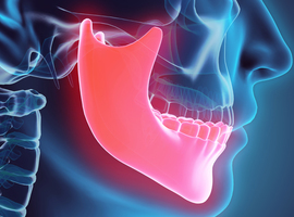 Slaapapneusyndroom: de bewegingen van de onderkaak geven informatie over het therapeutische effect van een mondbeugel