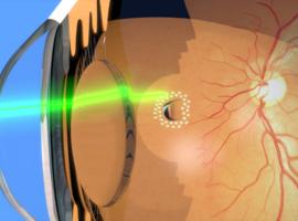 Congrès de la Société Française d'Ophtalmologie 2019
