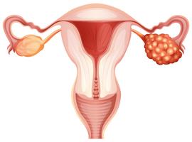 La CHIP est-elle devenue une option standard pour le traitement d'un cancer avancé de l'ovaire?