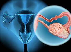Lymphadénectomie dans le cancer de l'ovaire avancé