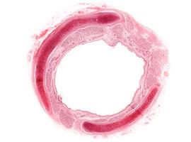 Intérêt de la recherche de métastases cérébrales lors du bilan initial d'un carcinome bronchique