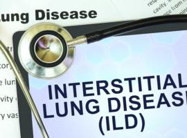 Approche diagnostique des pathologies interstitielles diffuses: intérêt des cryobiopsies pulmonaires