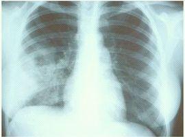 Trois fois plus de risques de contracter une infection fongique lors d'une grippe sévère