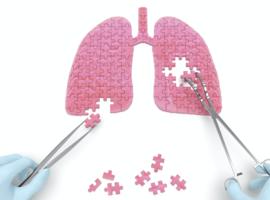 Longkanker:  vooruitgang, maar met kleine stapjes