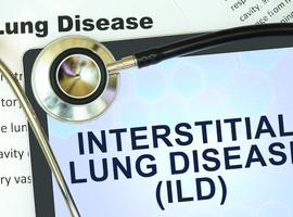 Pneumopathie interstitielle dans la sclérodermie systémique