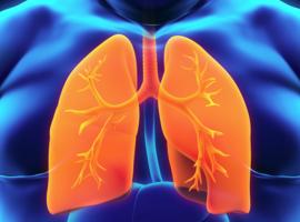 Asthme et obésité