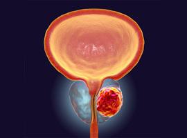 Partenariat IRE-CEN dans un radio-isotope prometteur contre le cancer de la prostate