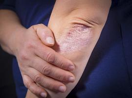 Remissie en lage ziekteactiviteit bij psoriatische artritis, (gewoon) een kwestie van index?