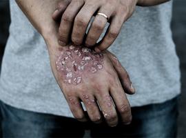 Otezla®: controleert veel meer dan  de huidletsels alleen, focust ook  op de systemische inflammatie