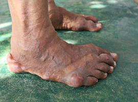 Acide urique et démence
