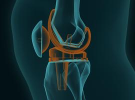 Hoelang gaat een knieprothese mee?