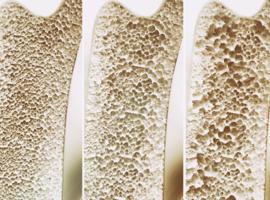 Osteoporose behandelen: tussen kunst en wetenschap