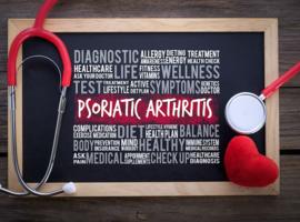 Arthrite psoriasique: une étude de phase II avec le guselkumab