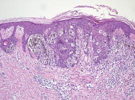 Genetische en  immunotherapeutische doelwitten  bij gemetastaseerd melanoom:  rol van de patholoog