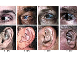 Manifestations dermatologiques de quelques maladies métaboliques