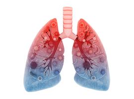 Les antibiotiques efficaces chez un patient sur 5 avec une infection respiratoire basse