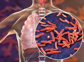 Onderzoekers ITG werken richtlijnen uit rond nieuwe technologie in strijd tegen tbc