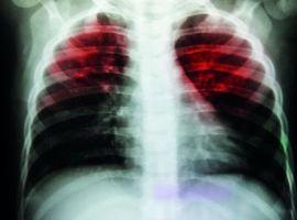 Tuberculose: vergeten, maar nog niet verdwenen…