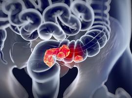 Journée de sensibilisation et d'information au dépistage du cancer colo-rectal