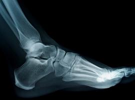 Service d'orthopédie-traumatologie: Chirurgie percutanée de l'avant-pied