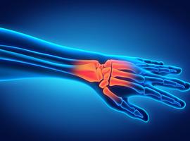Service d'orthopédie-traumatologie: Luxations périlunaires du carpe