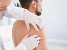 Mélanome métastatique: pleins feux sur de  nouvelles possibilités offertes par l'immunothérapie