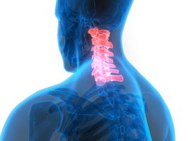 Transfert de nerfs en vue de restaurer la fonction du membre supérieur chez les tétraplégiques