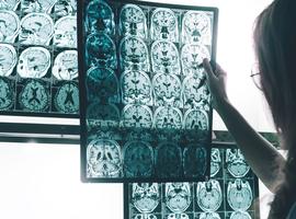 Invloed van aluminium op de ziekte van Alzheimer… is er echt een verband?